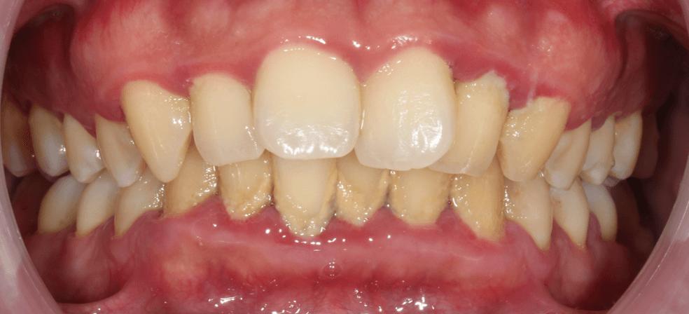 牙齒清潔不易導致常有蛀牙和牙齦發炎流血