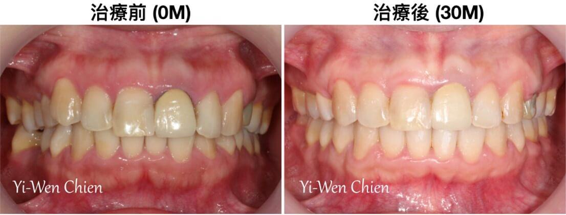 牙齒矯正前後口內照對比