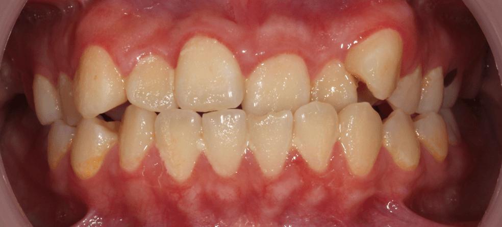 牙齒錯咬造成牙齒不當的磨耗