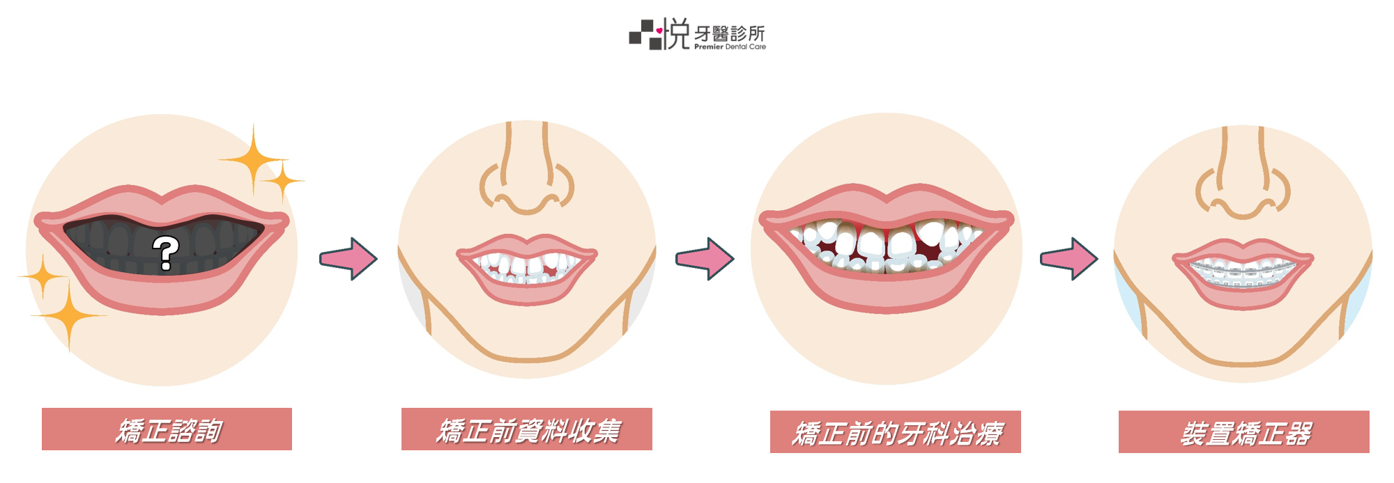 牙齒矯正流程