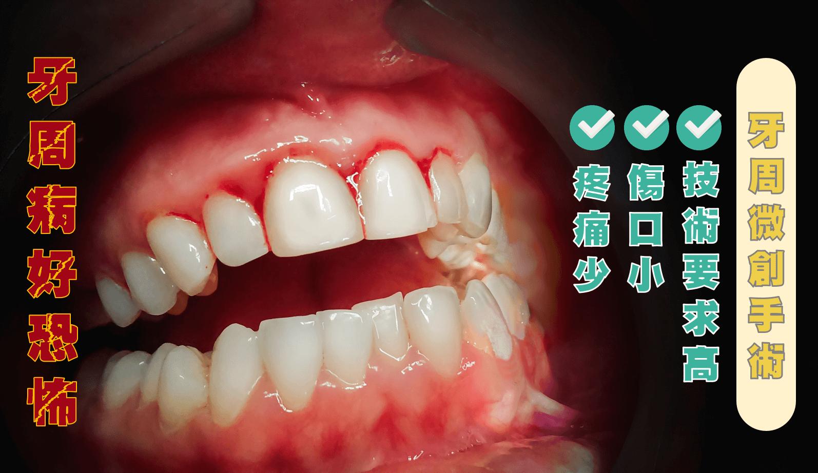 牙周病造成牙齦流血
