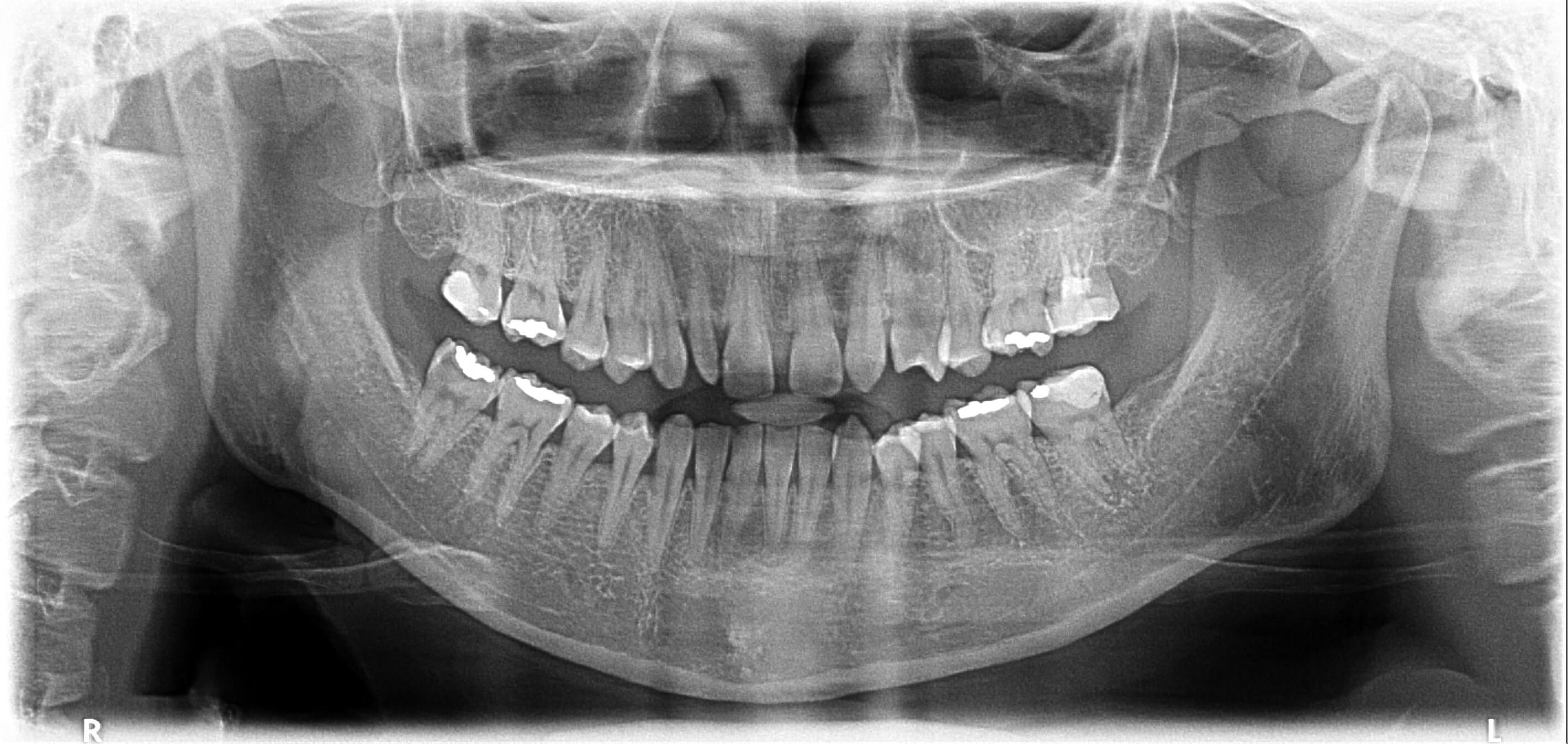 牙齒矯正前全口X光片
