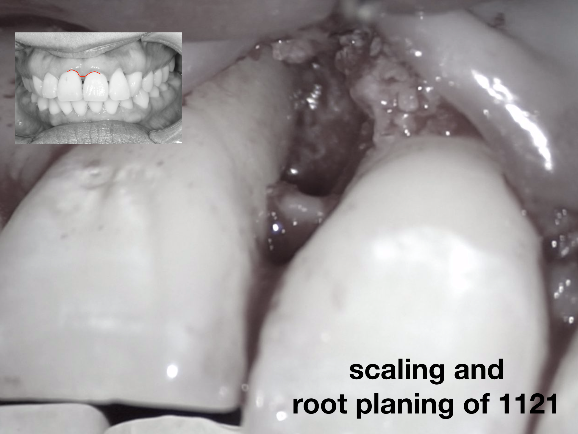 微創牙周手術幾乎沒有傷口