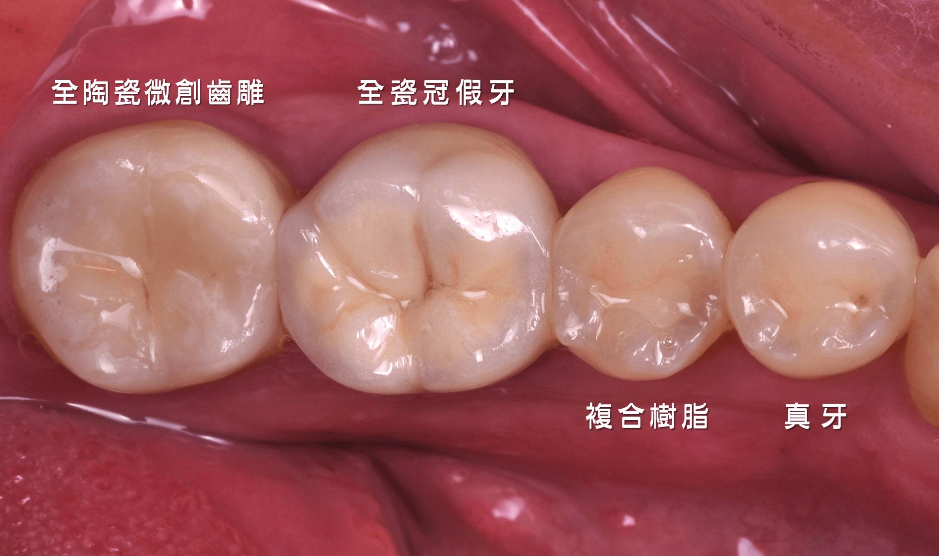 微創齒雕、全瓷冠假牙、複合樹脂、真牙