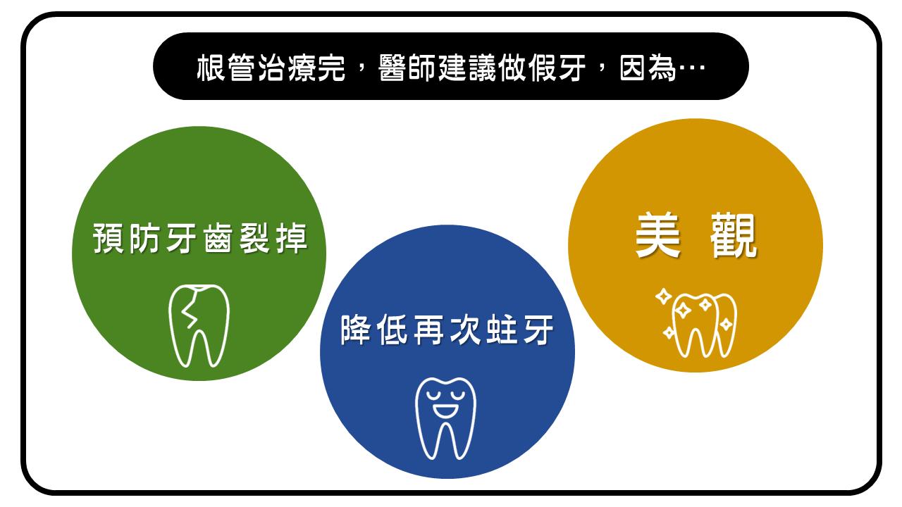 根管治療後建議做假牙的三大原因