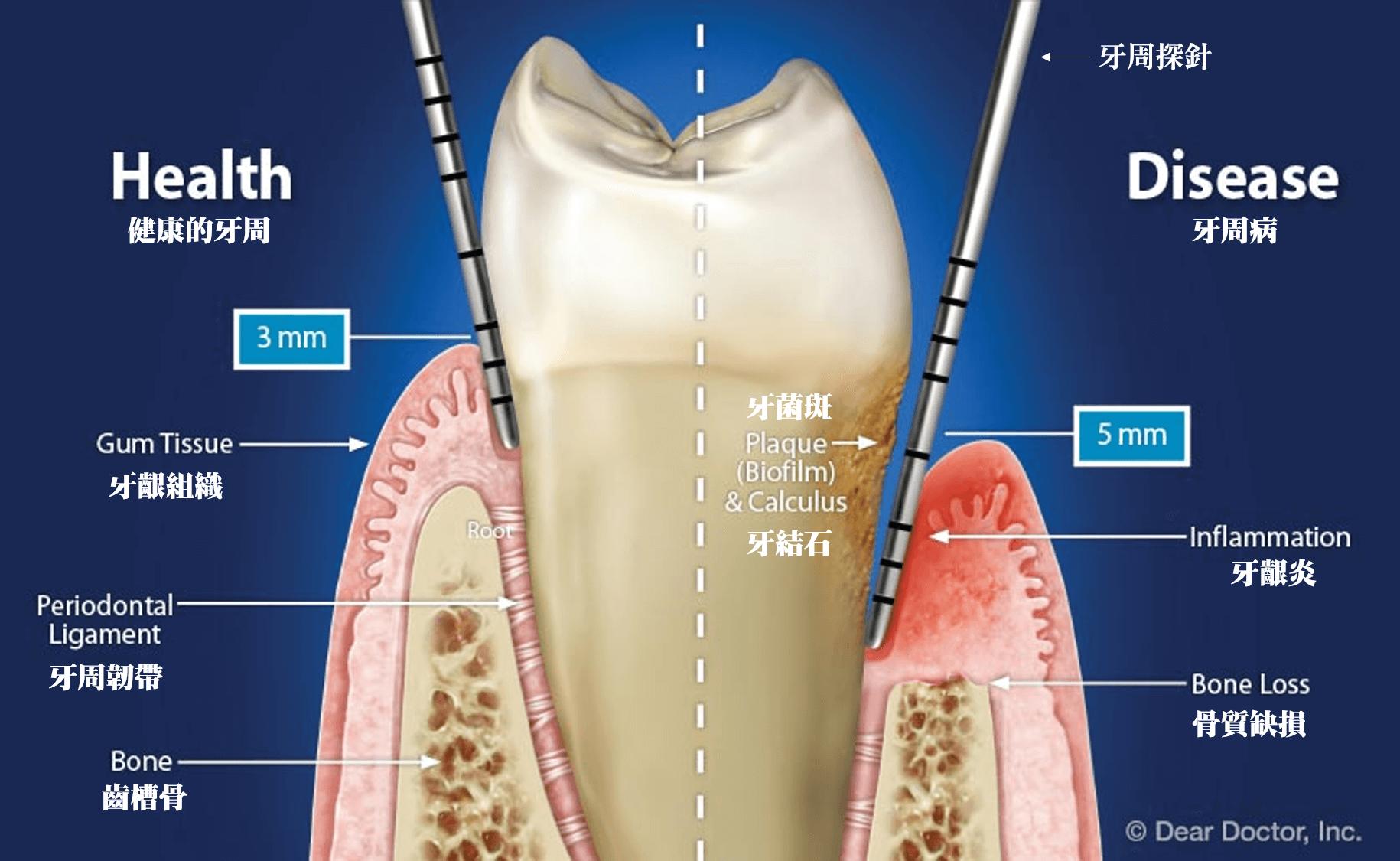健康的牙周與牙周病示意圖
