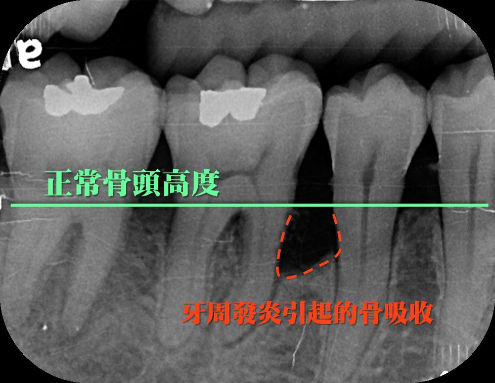 X光片可以看到牙周發炎引起的骨吸收