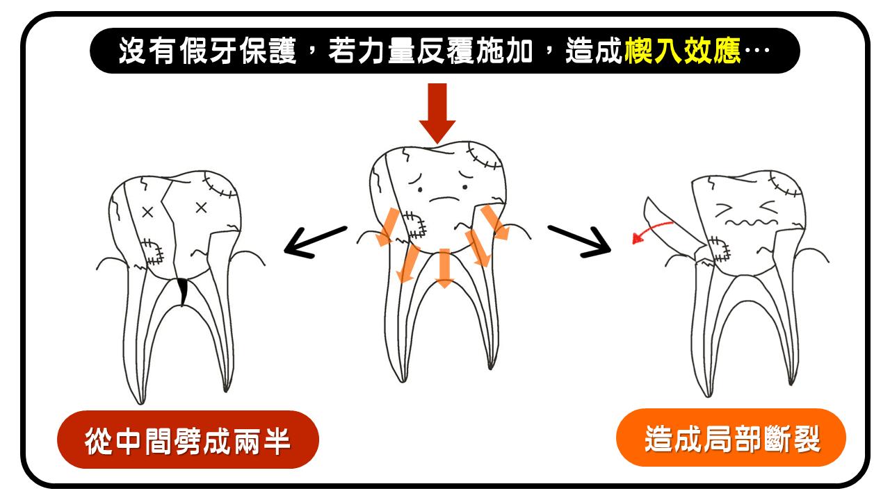 楔入效應可能造成牙齒斷裂