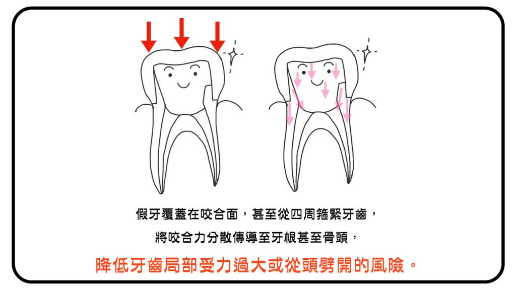 假牙從四周箍緊牙齒