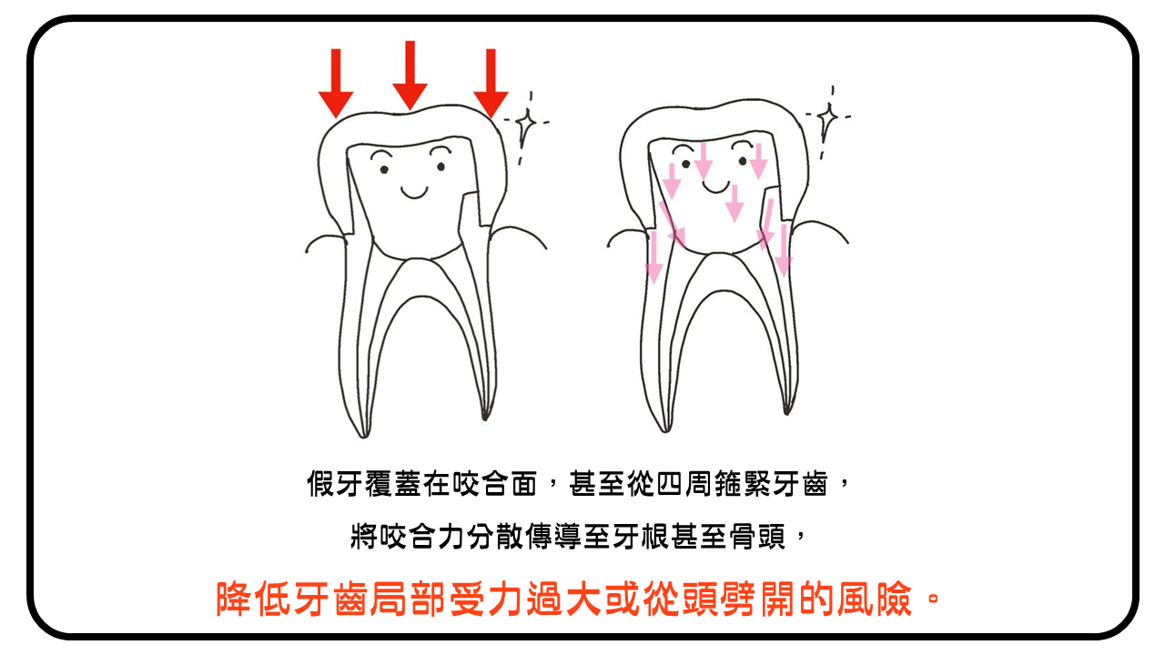 套上假牙可分散咬合力