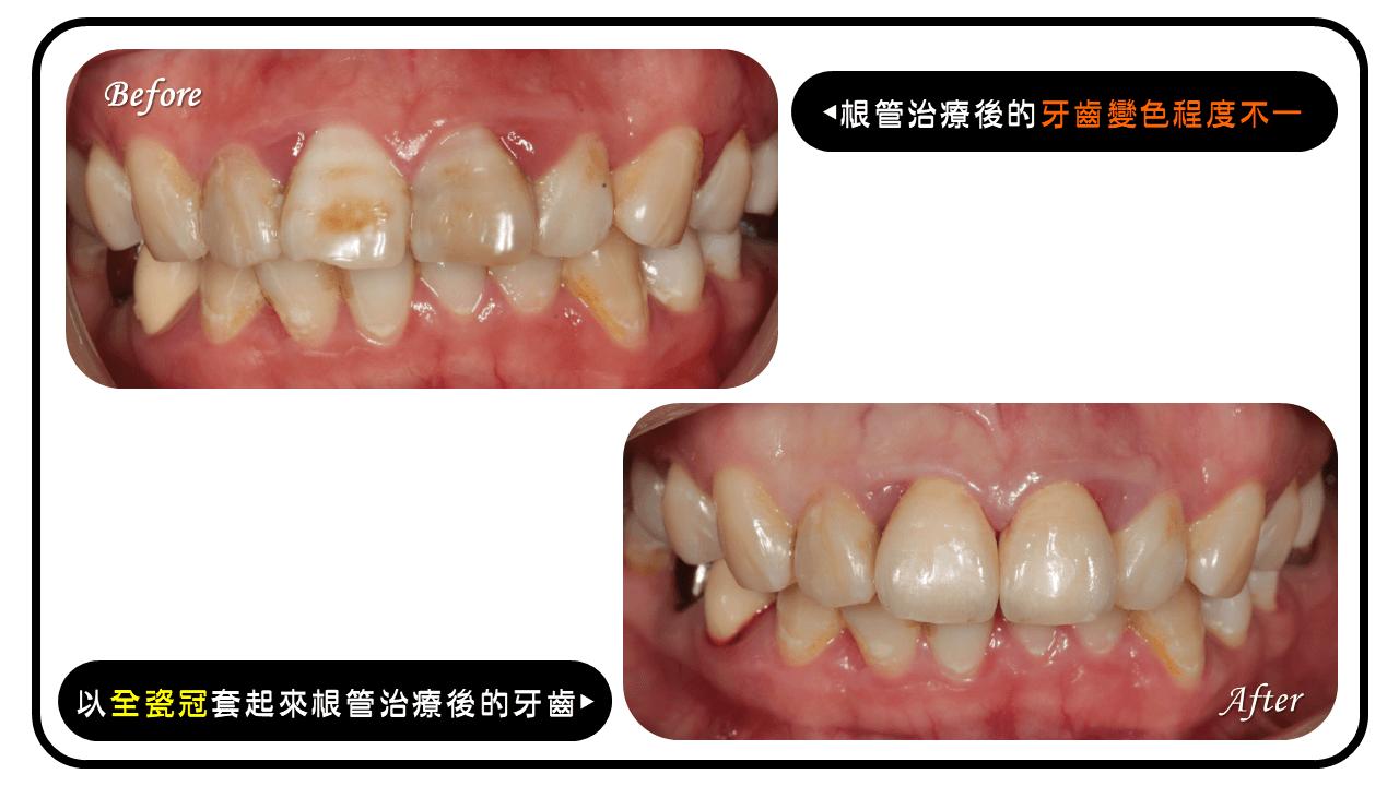 根管治療後牙齒變色,以全瓷冠改善美觀問題