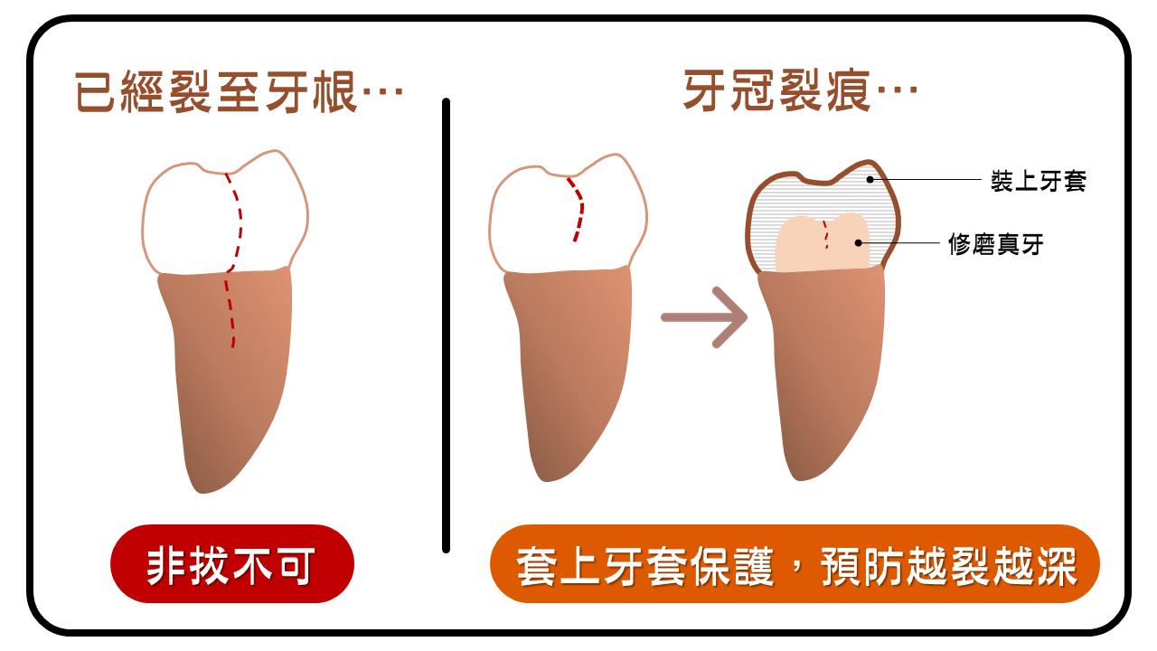 牙裂深度評估