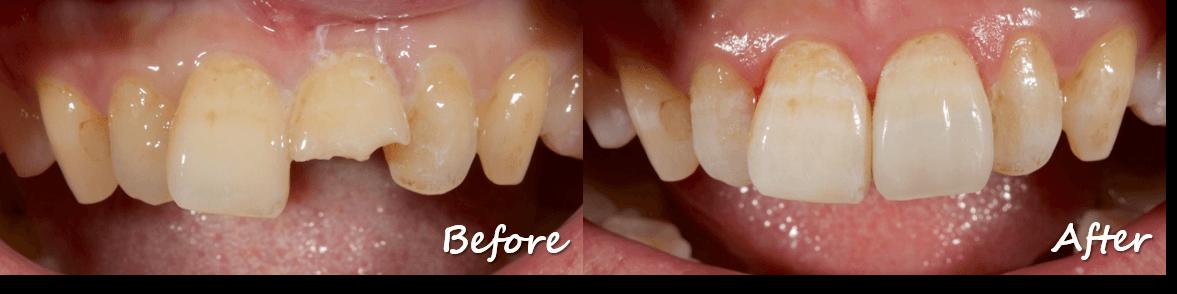 牙齒外傷或斷裂
