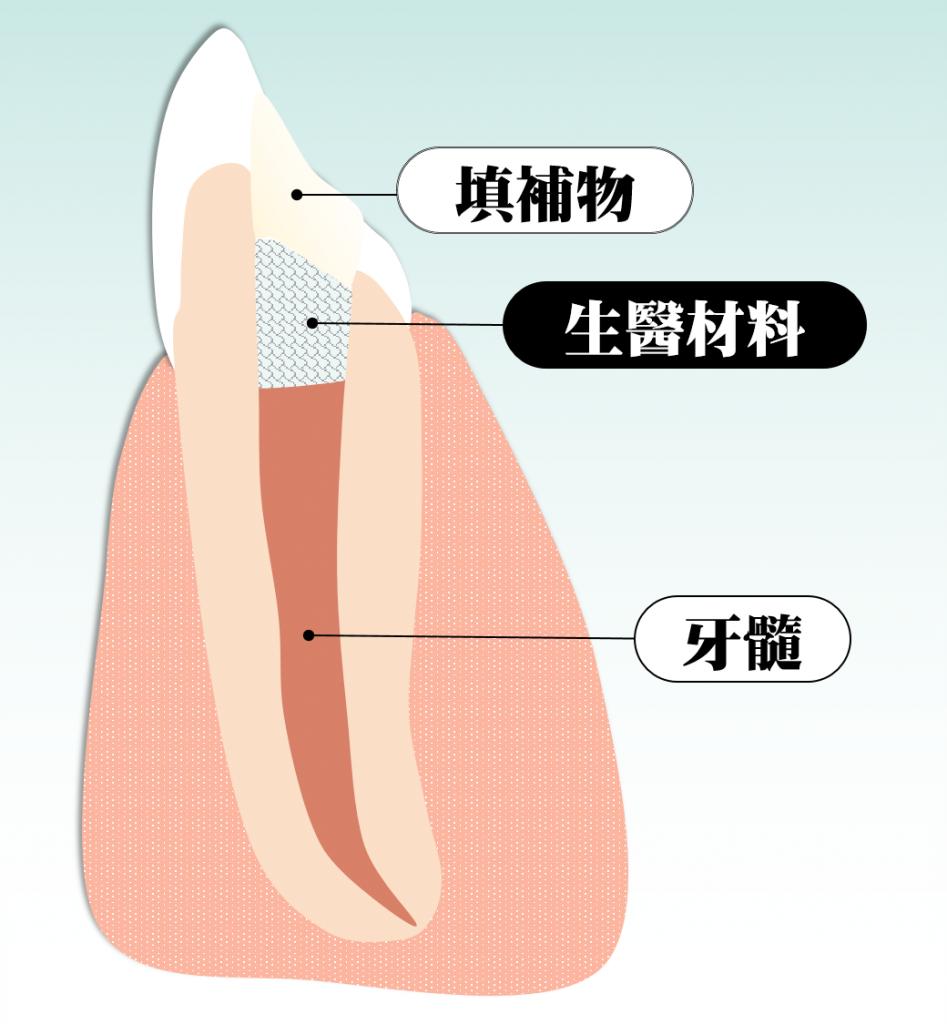 活髓治療放入生醫材料的側面剖面圖