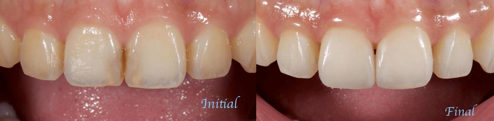 蛀牙或舊有填補物變色