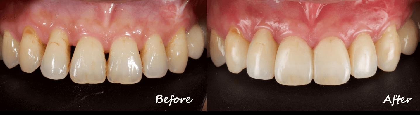 牙齦萎縮造成牙縫黑三角