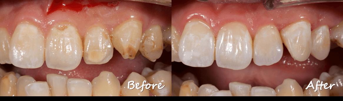 牙齒脫鈣變色
