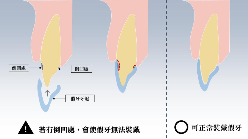 若有倒凹處會使假牙無法裝戴