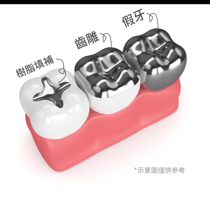 三顆牙齒蛀的範圍有大有小