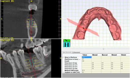 竹北牙醫用數位口掃機檔案模擬植牙導引板手術位置