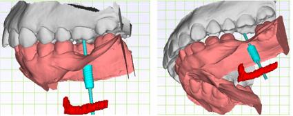 竹北牙醫用數位口掃機檔案模擬導引式植牙手術位置