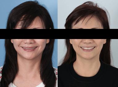 竹北牙醫饒媽媽做微笑曲線的術前術後對比