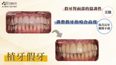 竹北牙醫調整假牙咬合高度