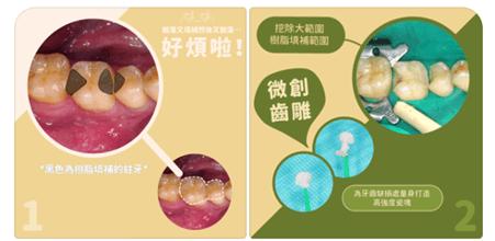 竹北牙醫為創齒雕挖掉舊有樹脂