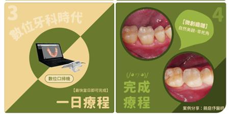 竹北牙醫一日齒雕模擬假牙和裝戴齒雕