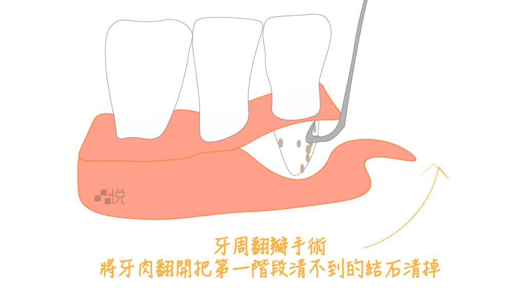 牙周翻瓣手術