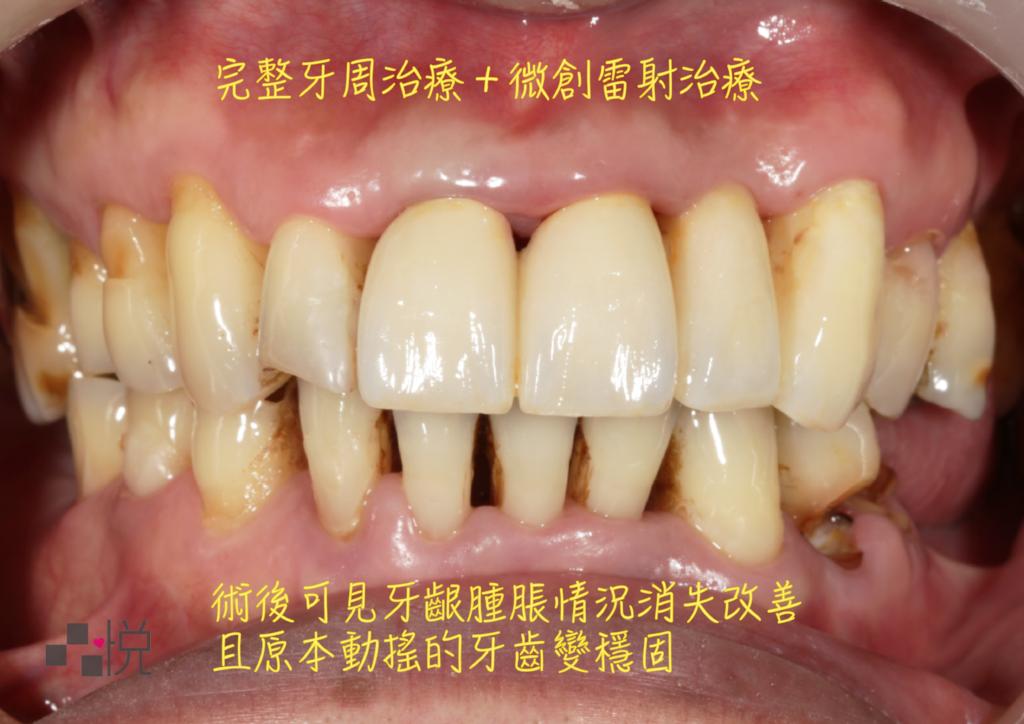 牙周病微創治療後牙齦的腫脹情況改善