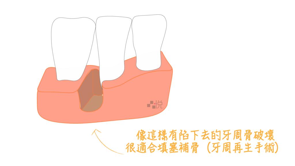 適合牙周再生補骨的牙周病缺損