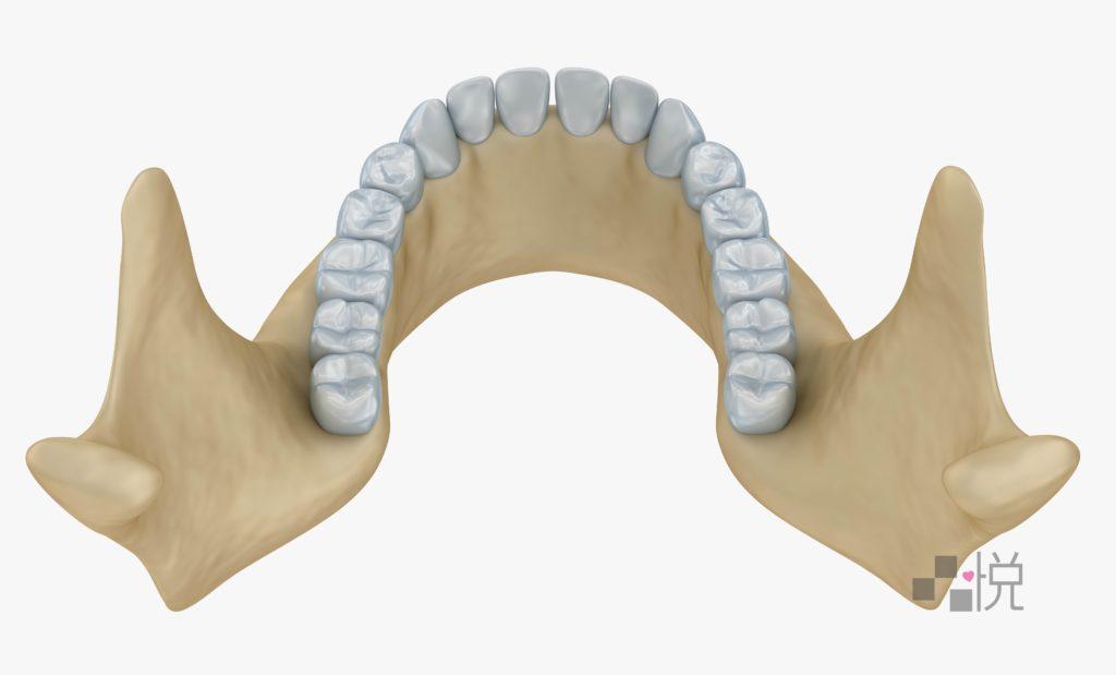 標準U行牙弓