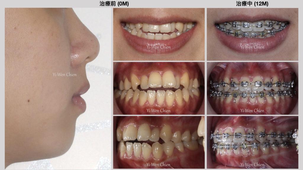 牙齒矯正治療齒列擁擠咬不起來前後比較圖