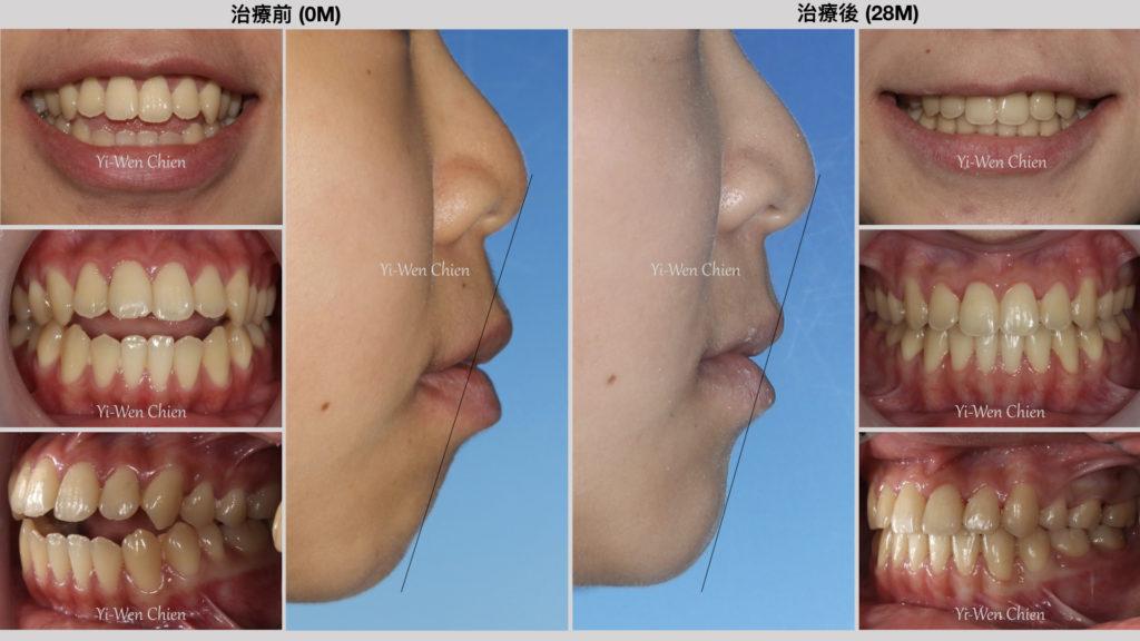牙齒治療暴牙改善長型臉前後比較