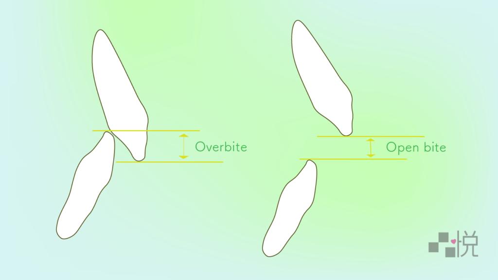 前牙開咬與正常咬合側面對比