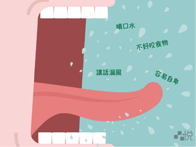 門牙咬不起來想求助牙齒矯正的困擾
