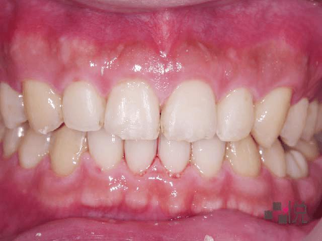 牙齒矯正後門牙縫隙關閉