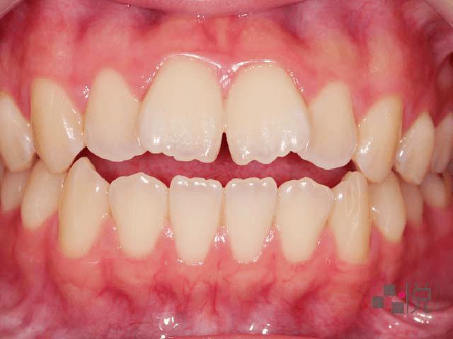 前牙開咬牙齒矯正前