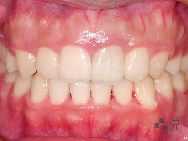 新竹品悅牙醫牙齒矯正
