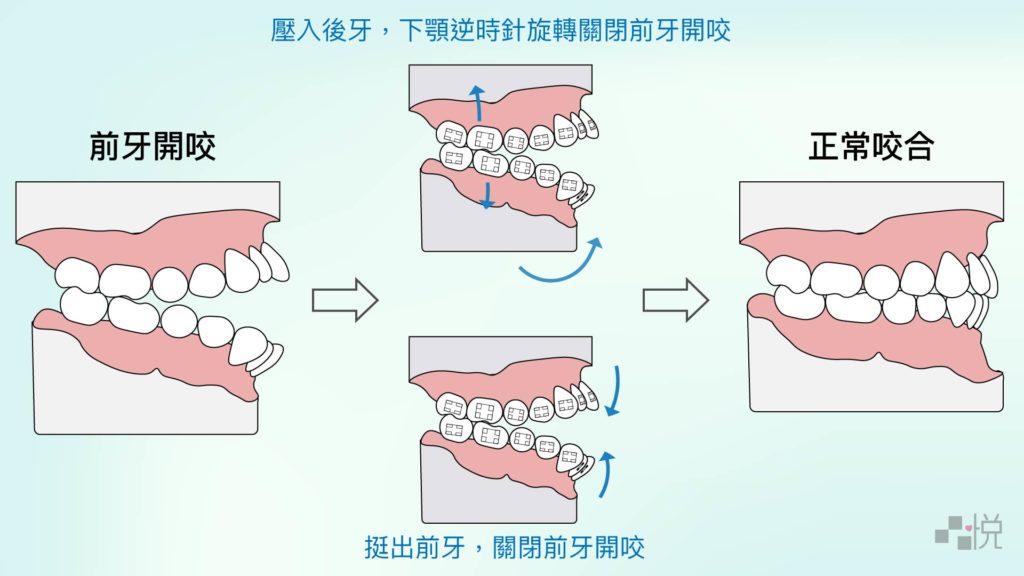 前牙開咬矯正原理