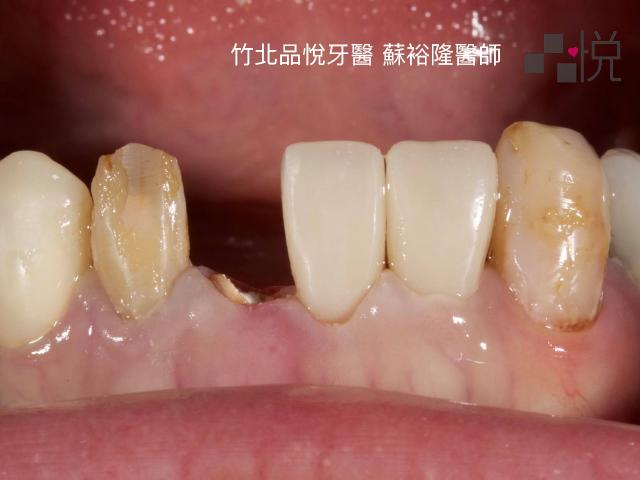 有一顆牙齒裂掉剩斷根