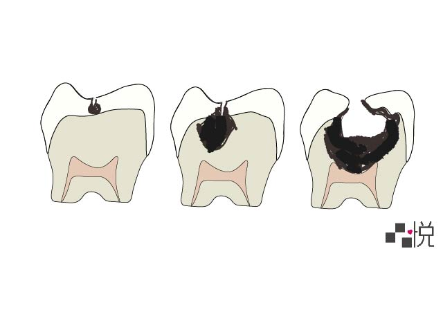 三顆牙齒在蛀牙的不同階段