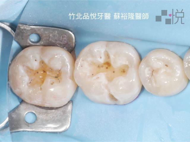 兩顆大臼齒挖掉樹脂後留了洞