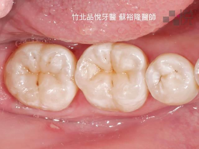兩顆大臼齒美學樹脂填補後以假亂真