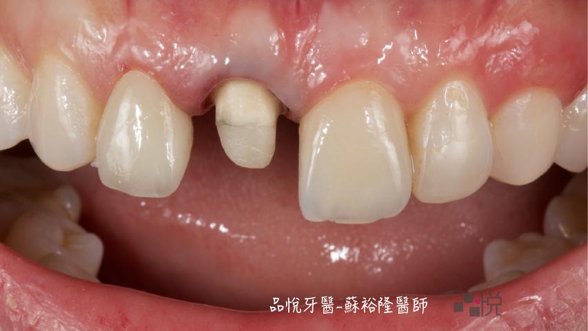 有一顆牙蛀得磨得小小的