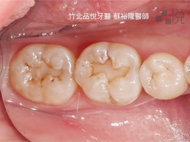 兩顆大臼齒有樹脂填補