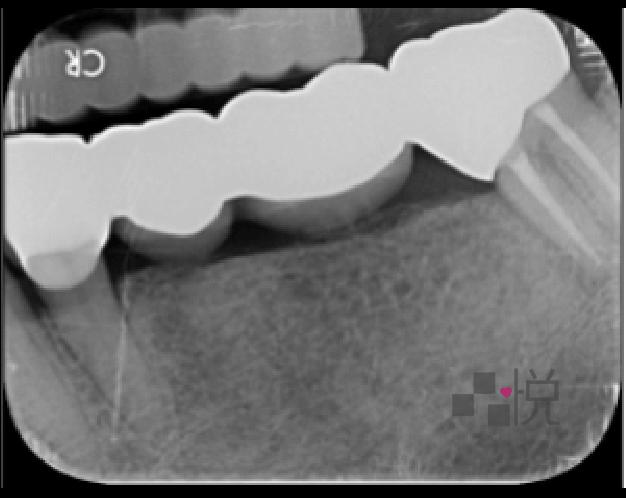 竹北品悅牙醫病患術後X光