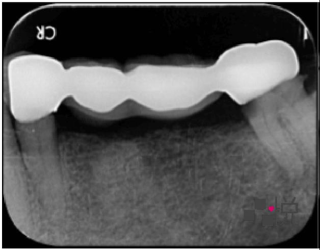 竹北品悅牙醫病患術前X光