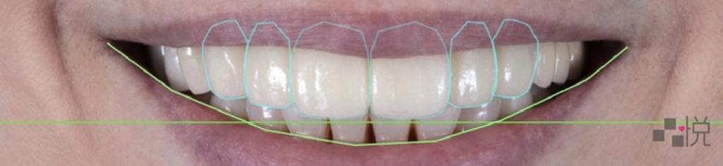 數位微笑設計下的量齒